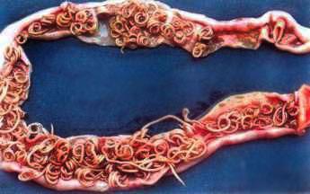 Quel médicament le meilleur des parasites